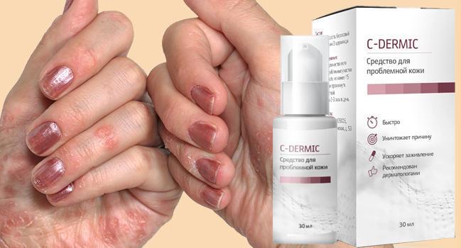 C-dermic от псориаза отзывы