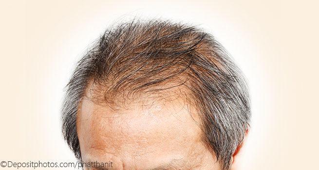 Народные рецепты от выпадения и для роста волос