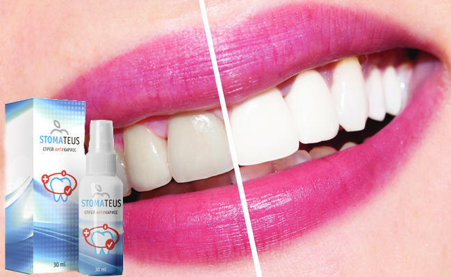 Стоматеус для отбеливания зубов эффективность