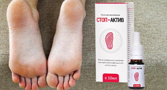 Лекарства от грибка на ногах между пальцами список